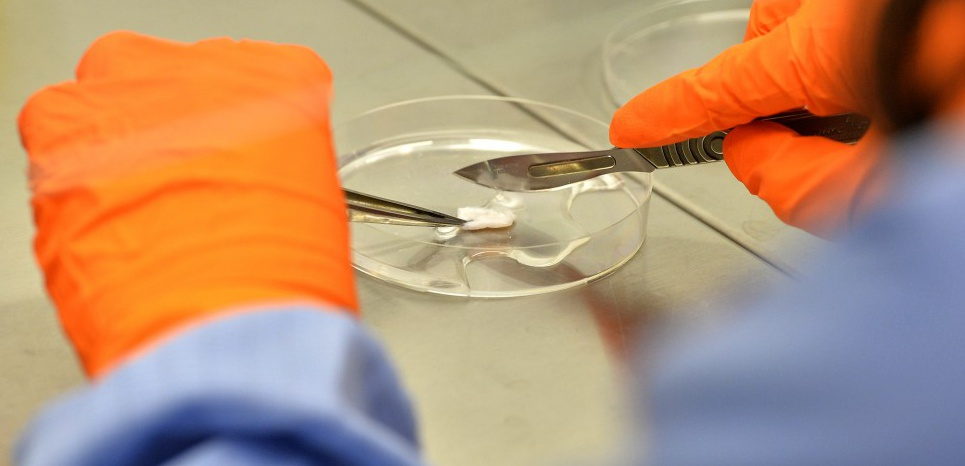 A laboratory engineer recovers skin on a sample of living cells to a 3D cell print at the laboratory of biotechnology company Poietis in Pessac, southwestern France on January 22, 2016. In the southwestern French city of Pessac, near Bordeaux, the young company Poietis has developed a promising technology that reproduces skin: creating human tissue by using 3D laser printing. / AFP / GEORGES GOBET
