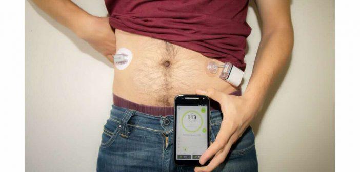 Diabeloop, une gestion automatisée du diabète de type 1